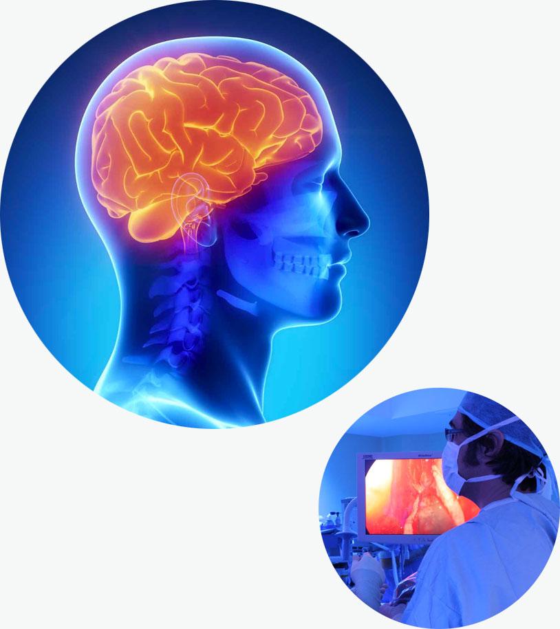 set-Neuro